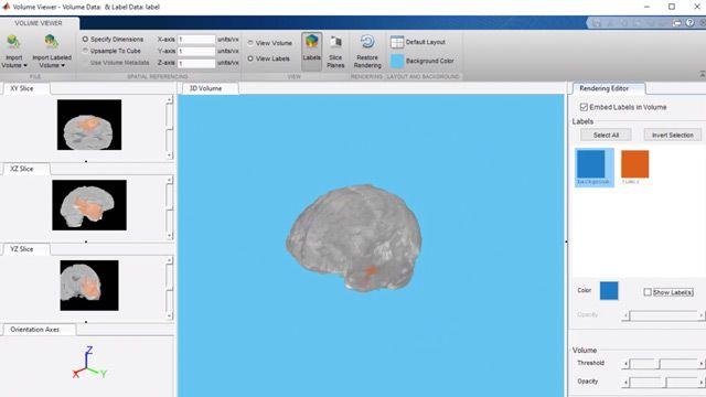 Esecuzione della segmentazione di tumori cerebrali da immagini biomediche 3D usando la rete neurale U-Net.