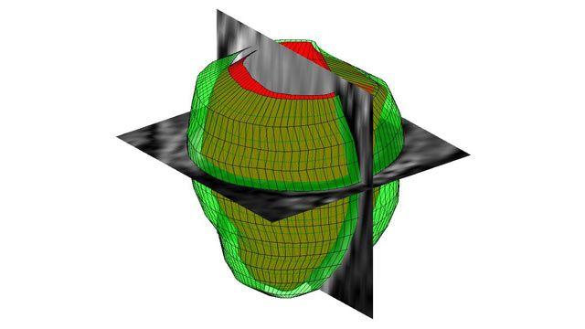 Elaborazione di immagini 3D con MATLAB