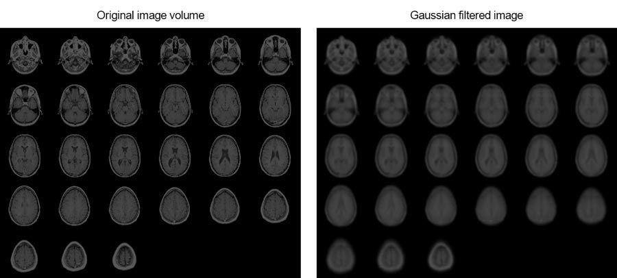 Quest'esempio mostra come rifinire immagini MRI di un cervello umano utilizzando il filtraggio gaussiano 3D.