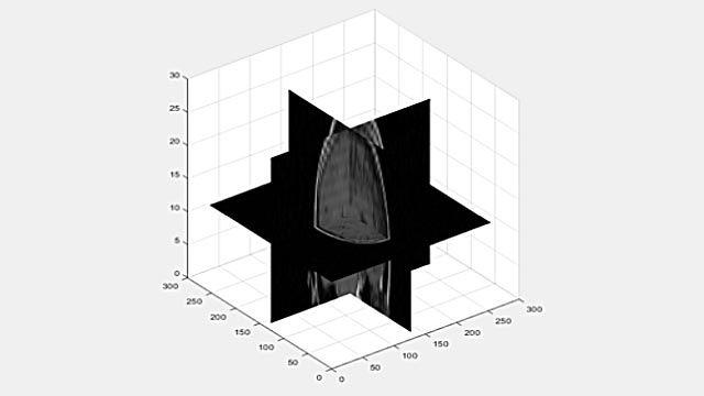 Visualizzazione di un volume 3D come piani 2D.