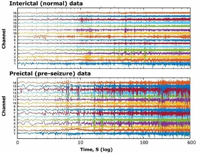 Dati EEG intracranici forniti da Kaggle.