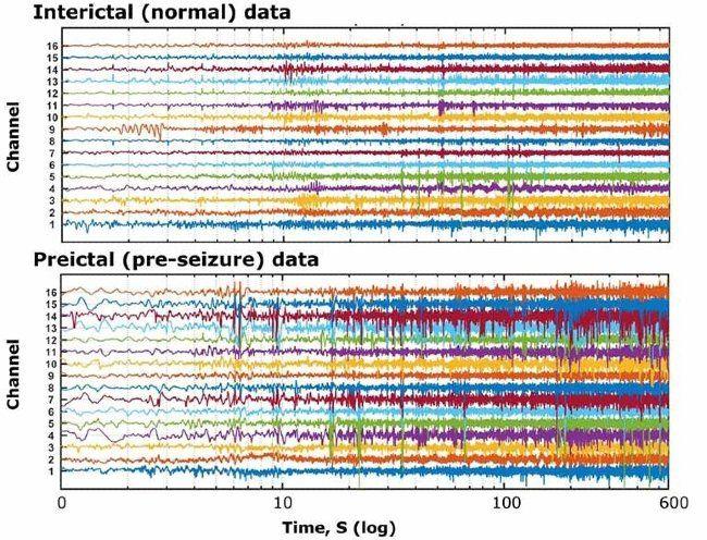 Canali multipli di dati di segnali corrispondenti a registrazioni EEG ottenute da un soggetto epilettico durante i periodi normali e pre-crisi.