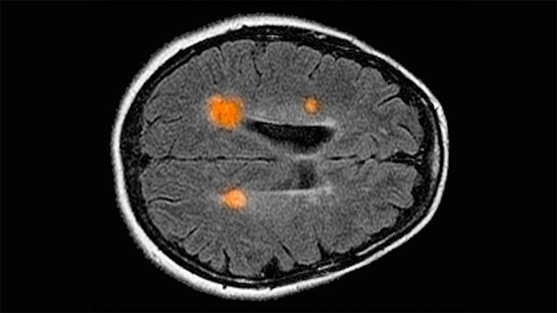 Mappatura del cervello umano